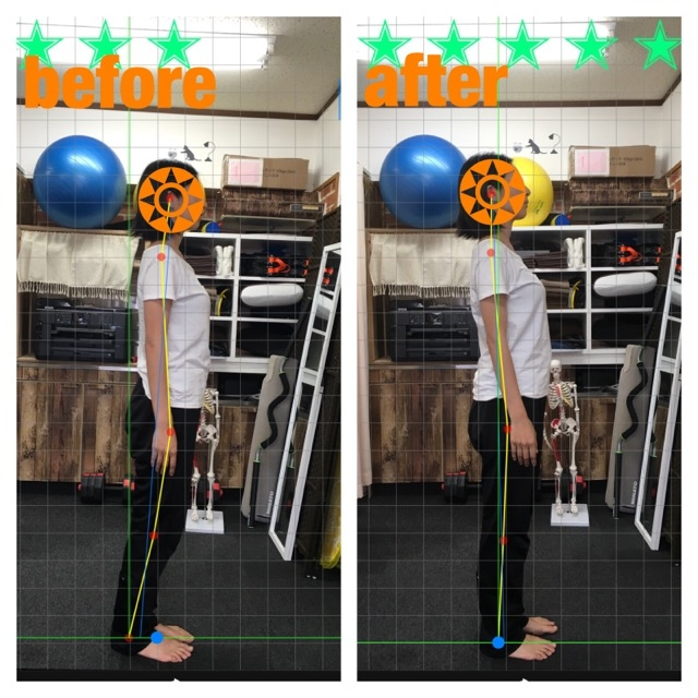 肩こり 腰痛 ひざ痛 坐骨神経痛 側弯症 スポーツコンディショニング KYT