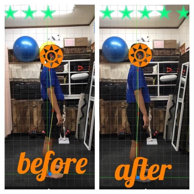 肩こり 腰痛 膝痛 側弯症 ヘルニア 坐骨神経痛 KYT スポーツコンディショニング 沖縄整体