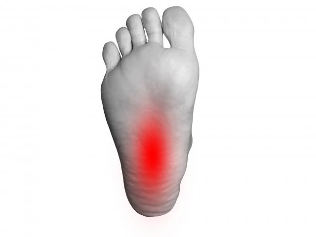 足底筋膜炎 痛み