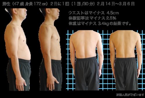 楽してトレーニング Eトレ 複合高周波ダイエット
